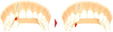 セラミック歯の装着